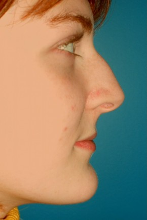 Before Photo - Nose Surgery - Case #11294 - Rhinoplasty - Lateral View