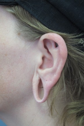 Before Photo - Ear Surgery - Case #11305 - Repair of earlobes - Lateral View