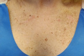 Before Photo - IPL / Photorejuvenation - Case #11306 - Intense Pulse Light Treatment - Frontal View