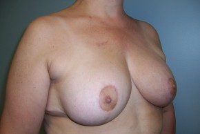 After Photo - Breast Reduction - Case #11333 - Oblique View