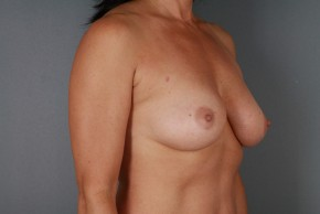 Before Photo - Breast Augmentation - Case #11437 - 47 year-old Breast Augmentation - Oblique View
