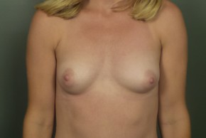 Before Photo - Breast Augmentation - Case #11465 - Breast Augmentation with Silicone Implants - Frontal View