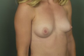 Before Photo - Breast Augmentation - Case #11465 - Breast Augmentation with Silicone Implants - Oblique View