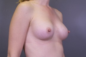After Photo - Breast Augmentation - Case #11468 - Breast Augmentation with Shaped Silicone Implants - Oblique View