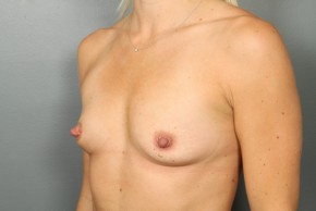 Before Photo - Breast Augmentation - Case #11499 - Breast Augmentation with Saline Implants - Oblique View