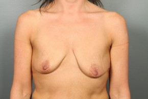 Before Photo - Breast Augmentation - Case #11500 - Breast Augmentation with Round High Profile Silicone Implants - Frontal View