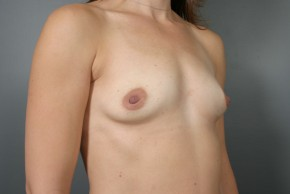 Before Photo - Breast Augmentation - Case #11501 - Breast Augmentation with Round Silicone Implants - Oblique View