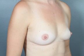 Before Photo - Breast Augmentation - Case #11507 - Breast Augmentation with Round Silicone Implants - Oblique View