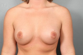 After Photo - Breast Augmentation - Case #11508 - Breast Augmentation with Round Silicone Implants - Frontal View