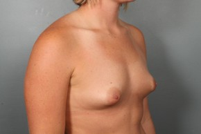 Before Photo - Breast Augmentation - Case #11508 - Breast Augmentation with Round Silicone Implants - Oblique View