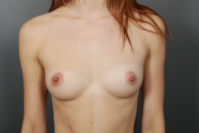 Before Photo - Breast Augmentation - Case #11510 - Breast Augmentation with Shaped Silicone Implants - Frontal View