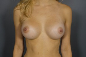 After Photo - Breast Augmentation - Case #11510 - Breast Augmentation with Shaped Silicone Implants - Frontal View