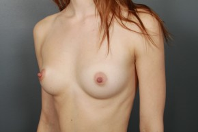 Before Photo - Breast Augmentation - Case #11510 - Breast Augmentation with Shaped Silicone Implants - Oblique View