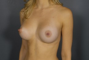 After Photo - Breast Augmentation - Case #11510 - Breast Augmentation with Shaped Silicone Implants - Oblique View