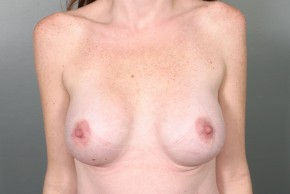 After Photo - Breast Augmentation - Case #11578 - Breast Augmentation with Shaped Silicone Implants - Frontal View