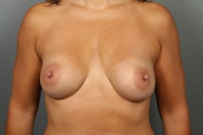 After Photo - Breast Augmentation - Case #11581 - Breast Augmentation with Shaped Silicone Implants - Frontal View