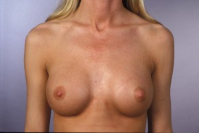 After Photo - Breast Augmentation - Case #11582 - Breast Augmentation with Saline Implants - Frontal View
