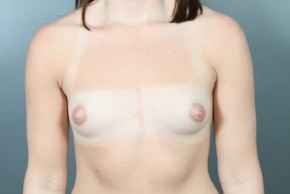 Before Photo - Breast Augmentation - Case #11583 - Breast Augmentation with Saline Implants - Frontal View