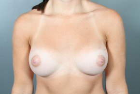 After Photo - Breast Augmentation - Case #11583 - Breast Augmentation with Saline Implants - Frontal View
