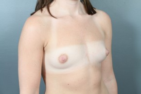 Before Photo - Breast Augmentation - Case #11583 - Breast Augmentation with Saline Implants - Oblique View
