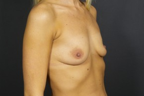 Before Photo - Breast Augmentation - Case #11584 - Breast Augmentation with Shaped SIlicone Implants - Oblique View