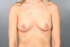 Before Photo - Breast Augmentation - Case #11585 - Breast Augmentation with Round Silicone Implants - Frontal View