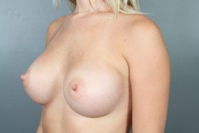 After Photo - Breast Augmentation - Case #11585 - Breast Augmentation with Round Silicone Implants - Oblique View