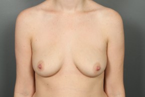 Before Photo - Breast Augmentation - Case #11586 - Breast Augmentation with Saline Implants - Frontal View
