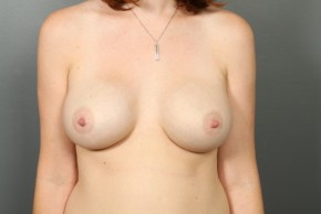 After Photo - Breast Augmentation - Case #11586 - Breast Augmentation with Saline Implants - Frontal View