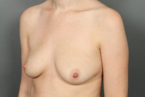 Before Photo - Breast Augmentation - Case #11586 - Breast Augmentation with Saline Implants - Oblique View