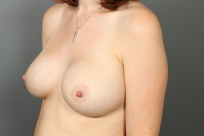 After Photo - Breast Augmentation - Case #11586 - Breast Augmentation with Saline Implants - Oblique View