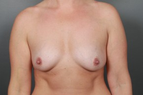 Before Photo - Breast Augmentation - Case #11587 - Breast Augmentation with Shaped Silicone Implants - Frontal View