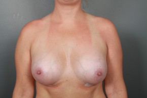 After Photo - Breast Augmentation - Case #11587 - Breast Augmentation with Shaped Silicone Implants - Frontal View