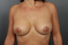 After Photo - Breast Augmentation - Case #11588 - Breast Augmentation with Shaped Silicone Implants - Frontal View