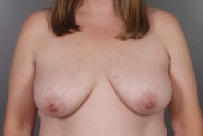 Before Photo - Breast Lift - Case #11796 - Breast Lift with Round Silicone Implants - Frontal View