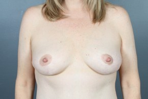 After Photo - Breast Lift - Case #11796 - Breast Lift with Round Silicone Implants - Frontal View