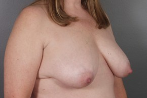 Before Photo - Breast Lift - Case #11796 - Breast Lift with Round Silicone Implants - Oblique View
