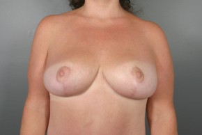After Photo - Breast Lift - Case #11805 - Breast Lift/Mastopexy - Frontal View