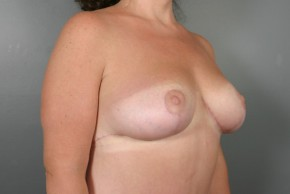After Photo - Breast Lift - Case #11805 - Breast Lift/Mastopexy - Oblique View
