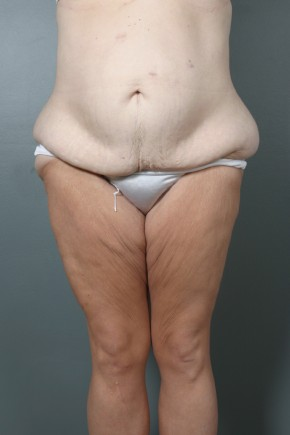 Before Photo - Lower Body Lift - Case #11806 - Lower Body Lift after Massive Weight Loss - Frontal View