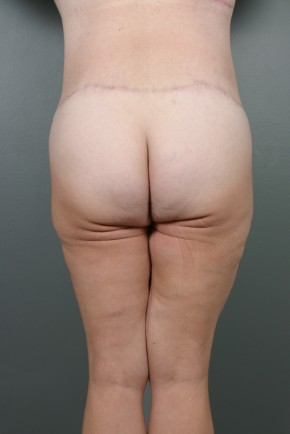 After Photo - Lower Body Lift - Case #11806 - Lower Body Lift after Massive Weight Loss - Posterior View