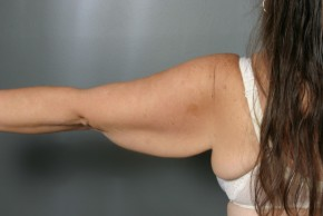 Before Photo - Upper Arm Lift - Case #11807 - Posterior View