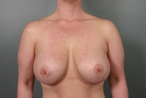 After Photo - Breast Lift - Case #11809 - Augmentation Mastopexy with Saline Implants - Frontal View
