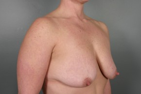 Before Photo - Breast Lift - Case #11809 - Augmentation Mastopexy with Saline Implants - Oblique View