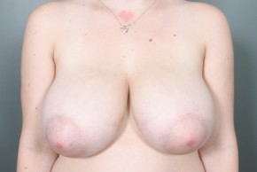 Before Photo - Breast Reduction - Case #11810 - Frontal View