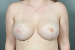 After Photo - Breast Reduction - Case #11810 - Frontal View
