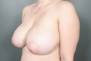 Before Photo - Breast Reduction - Case #11810 - Oblique View