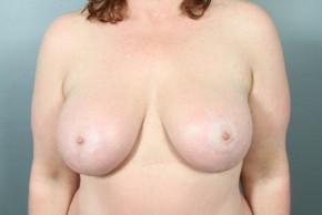 After Photo - Breast Lift - Case #11813 - Augmentation Mastopexy with Saline Implants - Frontal View