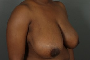 Before Photo - Breast Reduction - Case #11814 - Oblique View