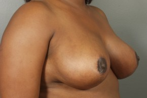 After Photo - Breast Reduction - Case #11814 - Oblique View